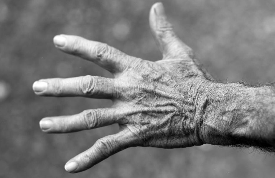 Top 5 Supplements to Beat Arthritis